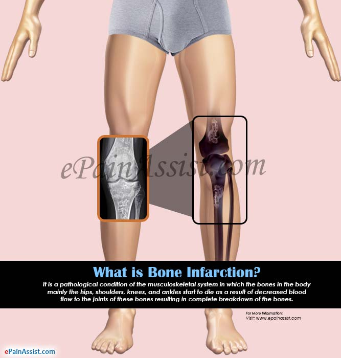 What is Bone Infarction?