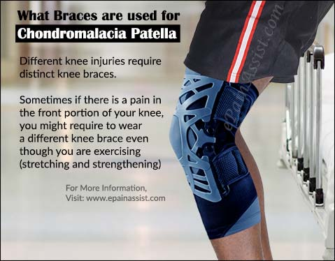 What Braces are used for Chondromalacia Patella (CMP)?