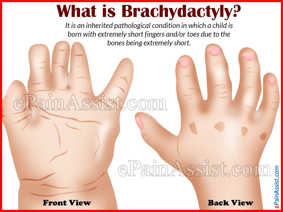what causes brachydactyly & what is its treatment?, Skeleton