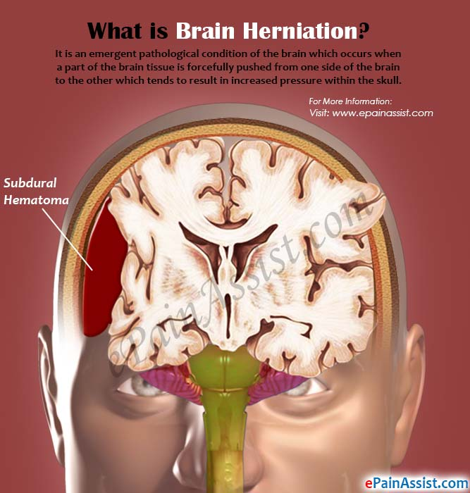 What is Brain Herniation?