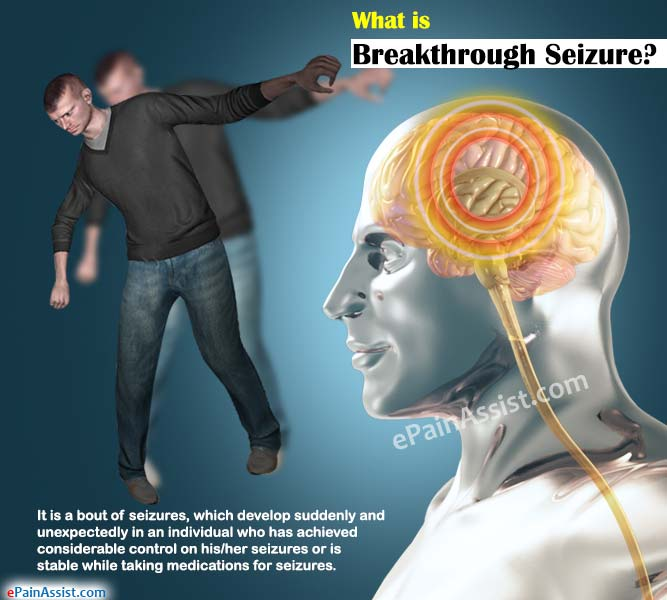 What is a Breakthrough Seizure?