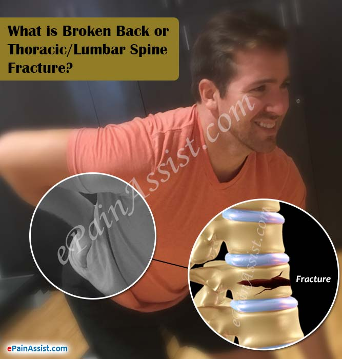 What is Broken Back or Thoracic/Lumbar Spine Fracture?