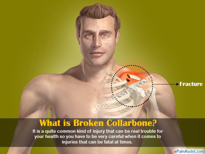 What is Broken Collarbone?