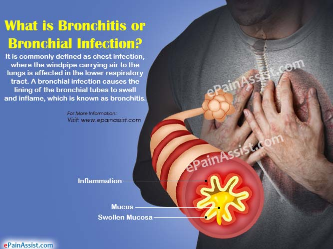 What is Bronchitis or Bronchial Infection?