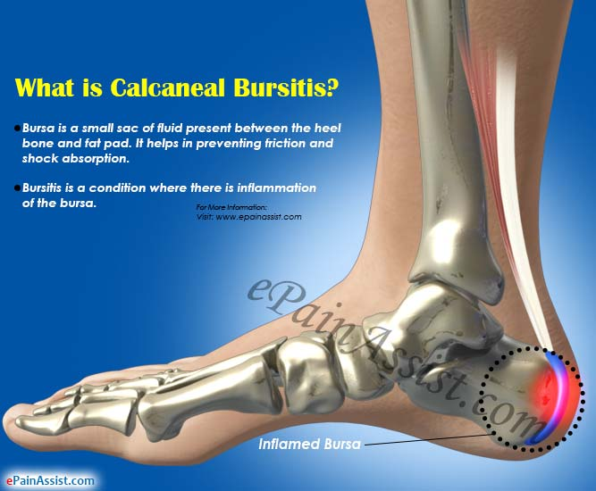 What is Calcaneal Bursitis?