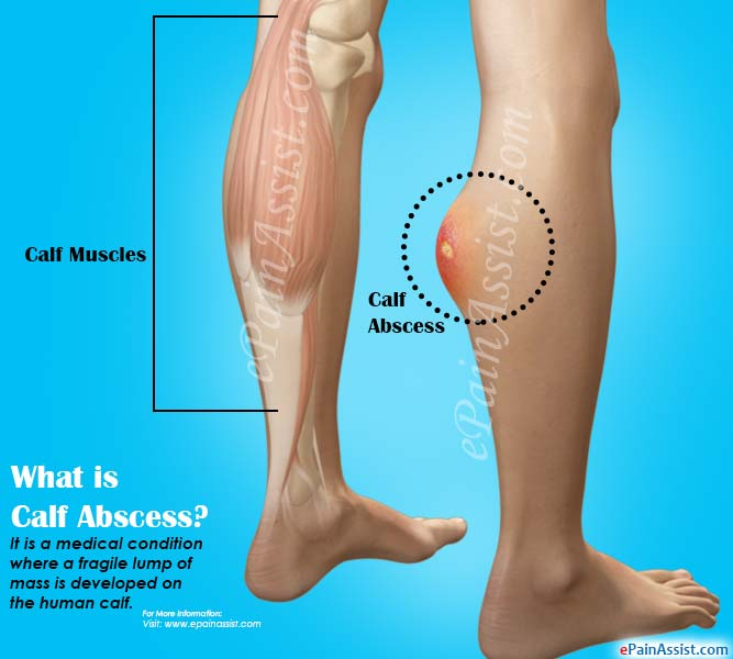What is Calf Abscess?