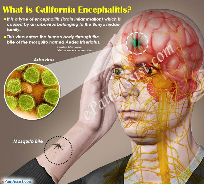 What is California Encephalitis?