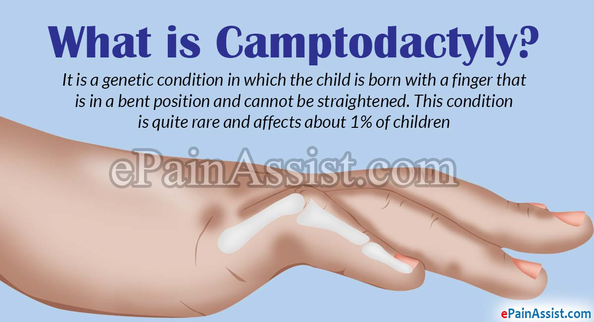 What is Camptodactyly?