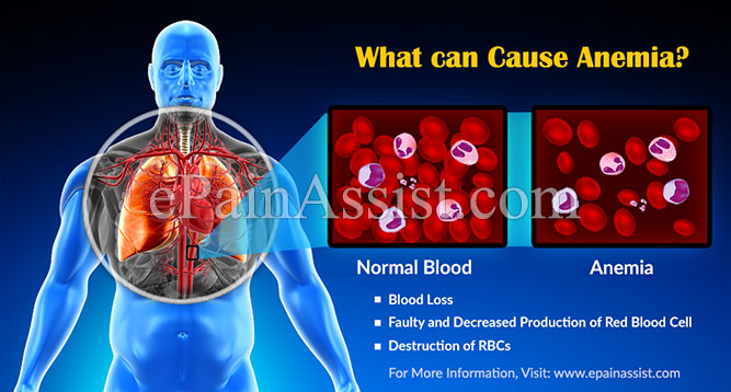 What Causes Anemia And How Can It Be Treated