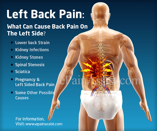 Left Back Pain Symptoms Causes Treatment Prevention