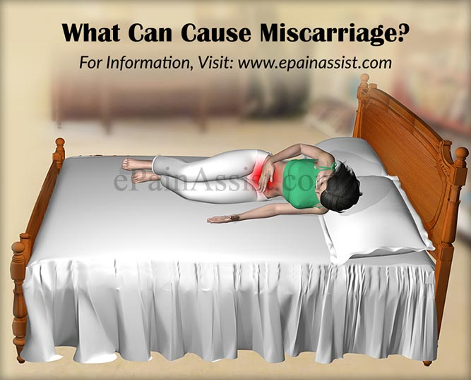 What Can Cause Miscarriage?