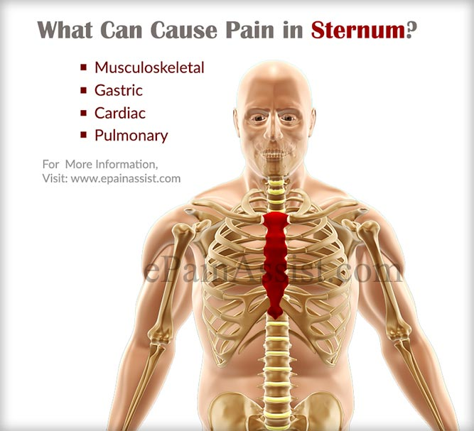 What Are the Causes of Pain Below Sternum? LIVESTRONGCOM