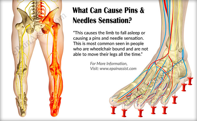 What Can Cause Pins And Needles Sensation?
