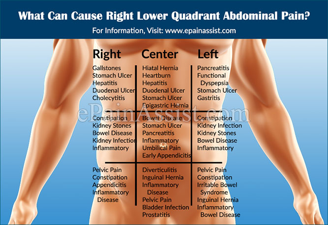 what can cause right lower quadrant abdominal pain amp how