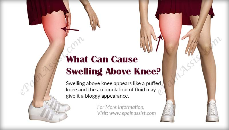 what can cause swelling above knee & what is its treatment?, Human body