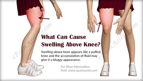 What Can Cause Swelling Above Knee?
