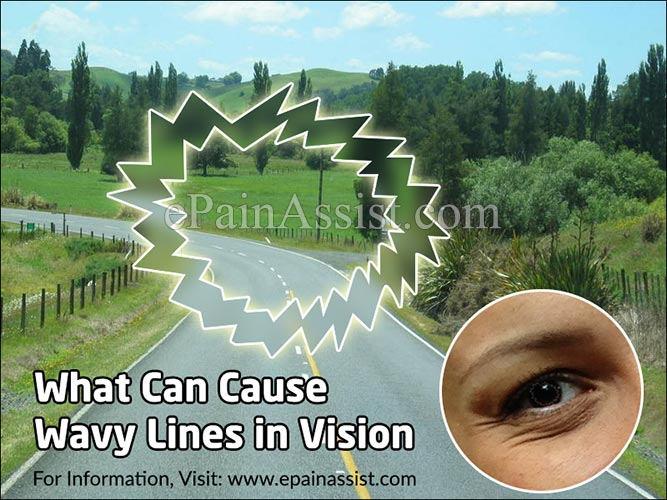 What Can Cause Wavy Lines in Vision?