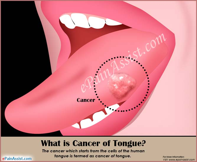 What is Cancer of Tongue?