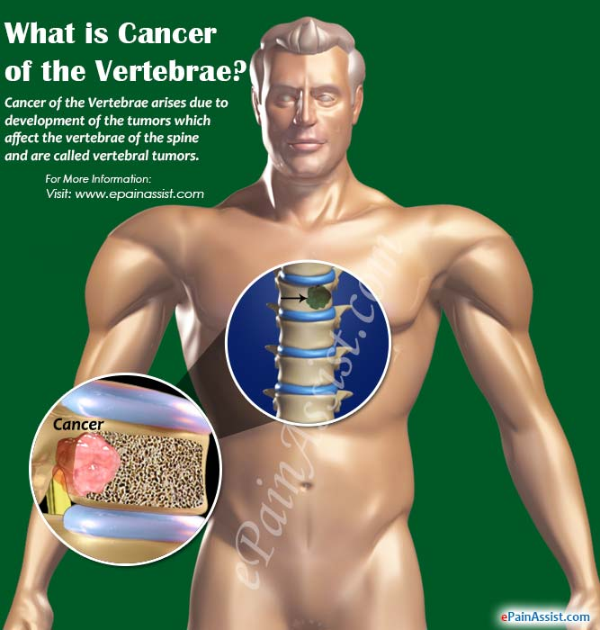 What is Cancer of the Vertebrae?