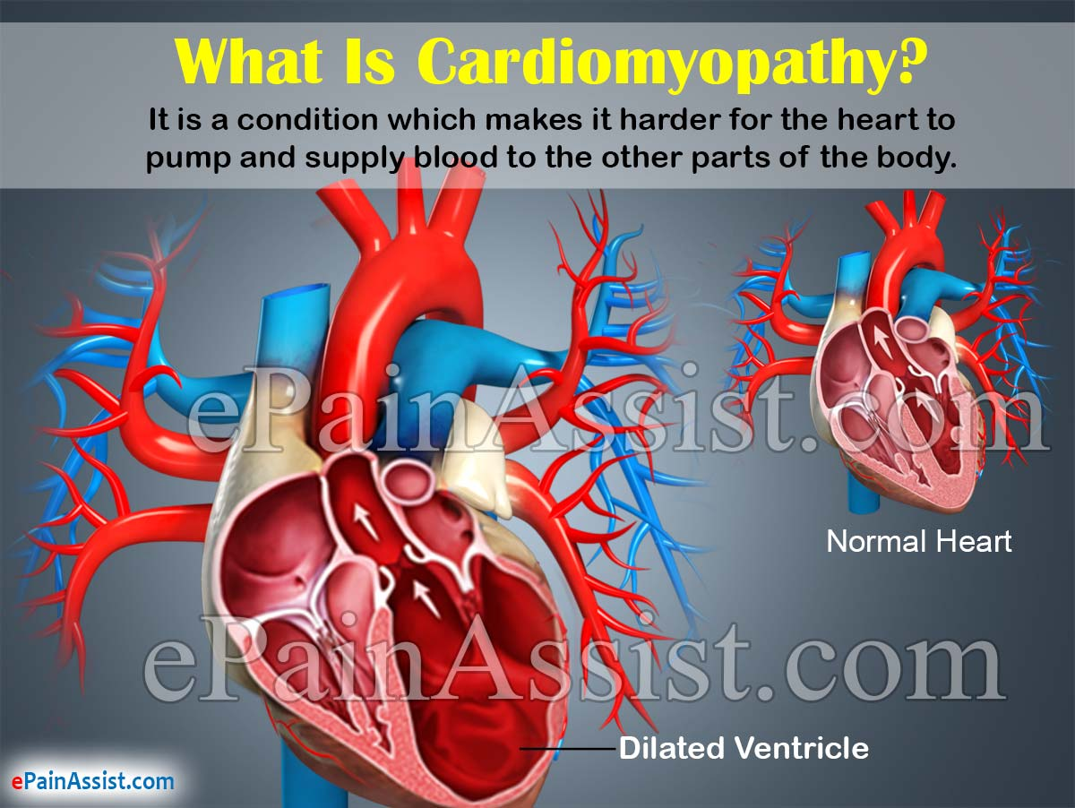 What Is Cardiomyopathy?