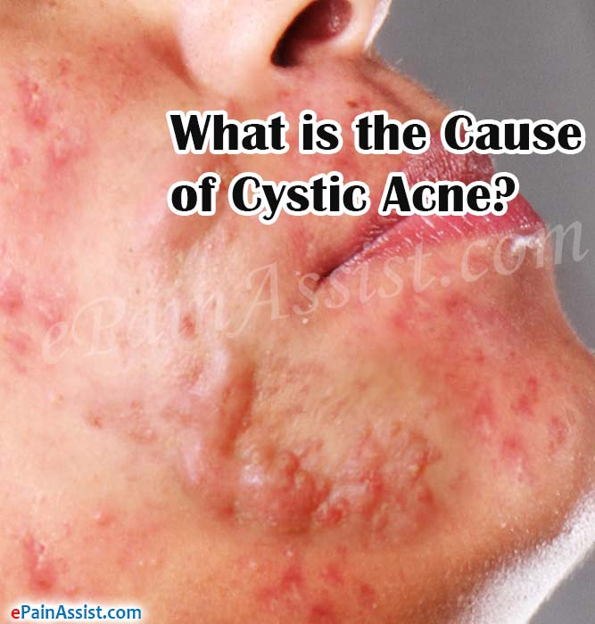 What is the Cause of Cystic Acne?