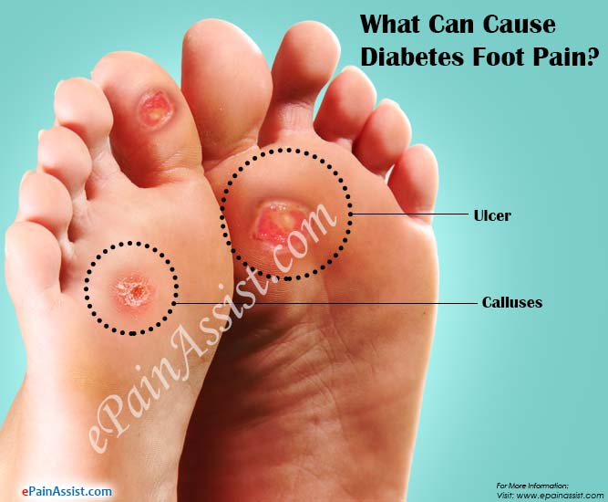 What Can Cause Diabetes Foot Paintreatmentsymptomsprevention