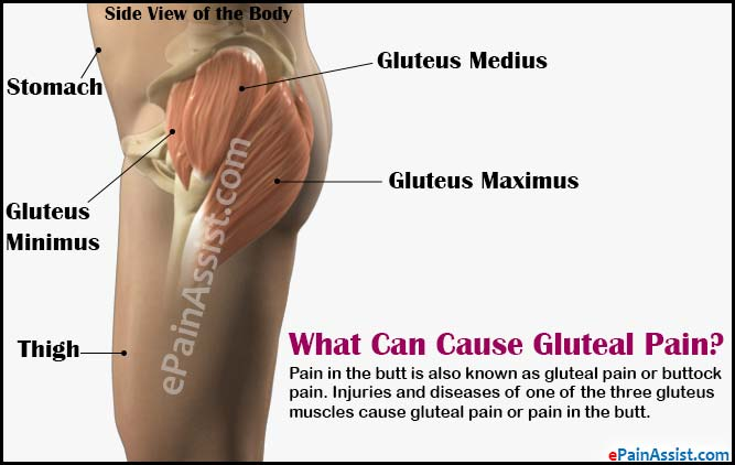 what can cause gluteal pain or pain in the butt rh epainassist com Si Joint Pain Symptoms Buttocks My Left Buttock Hurts