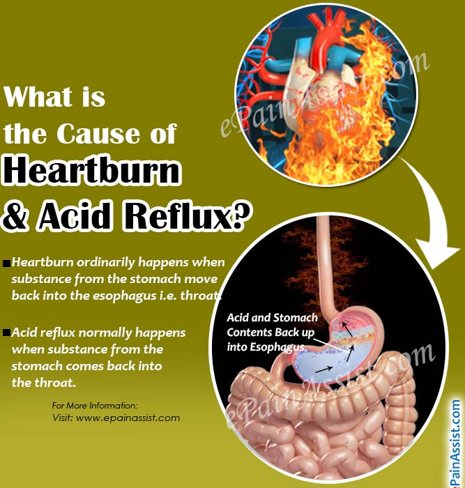 What Is The Cause Of Heartburn & Acid Reflux?