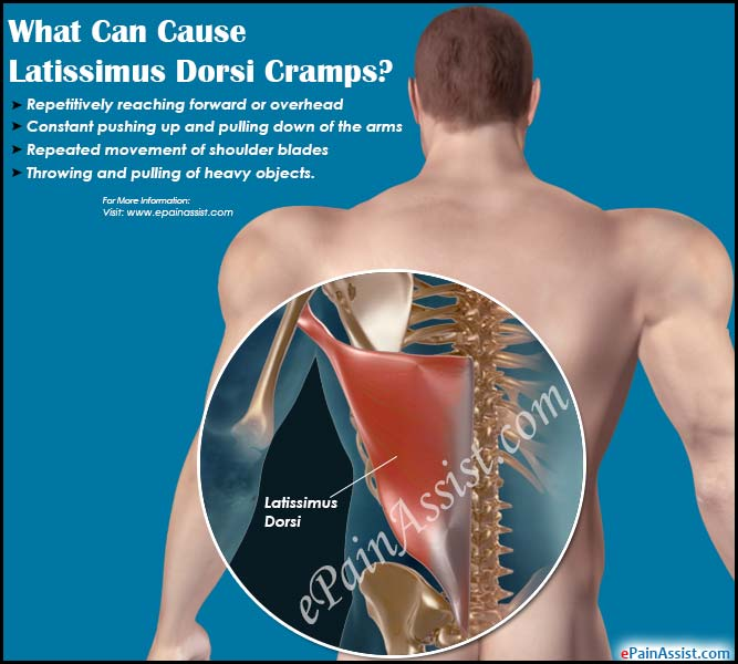 What Can Cause Latissimus Dorsi Cramps?