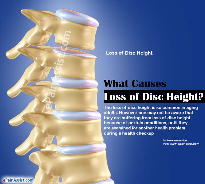 What Causes Loss of Disc Height?
