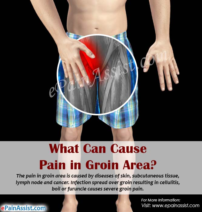 What Can Cause Pain In Groin Area