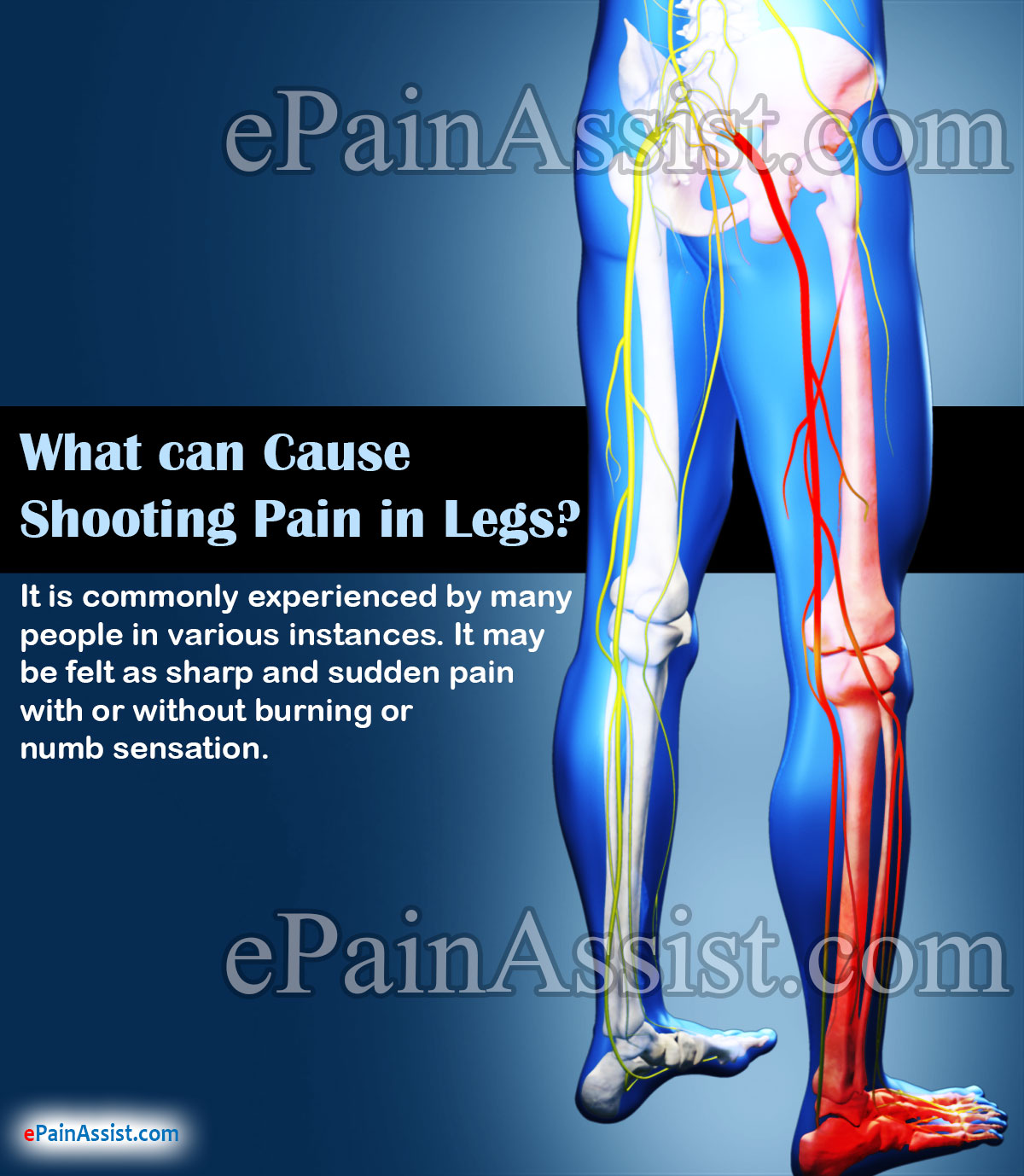 What can Cause Shooting Pain in Legs?