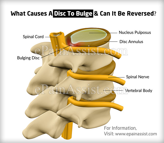What Causes A Disc To Bulge & Can It Be Reversed?