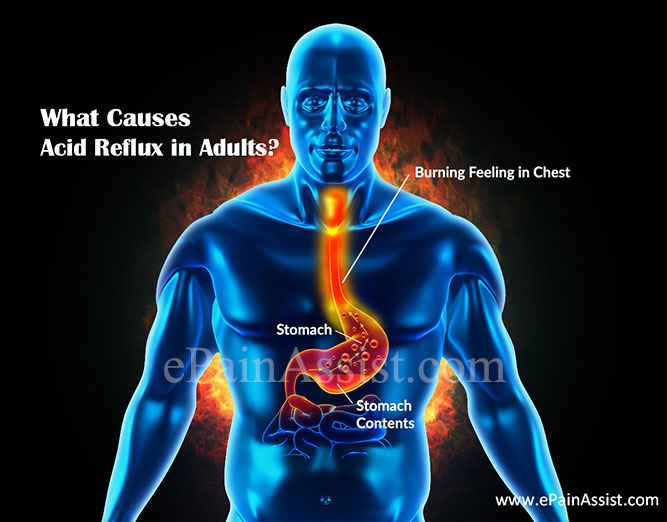 What Causes Acid Reflux in Adults?
