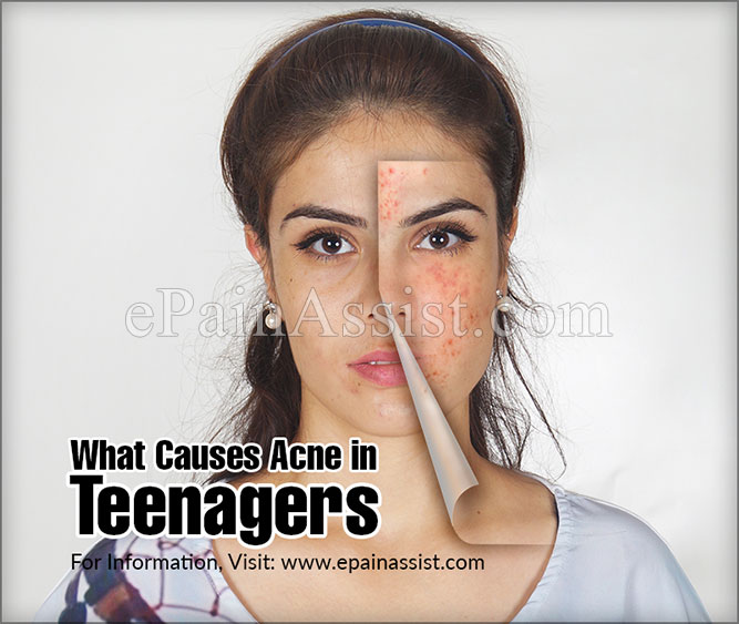 What Causes Acne in Teenagers?