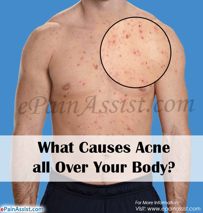 What Causes Acne all Over Your Body?