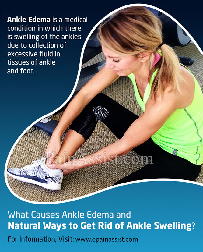 Natural Ways to Get Rid of Ankle Edema or Ankle Swelling