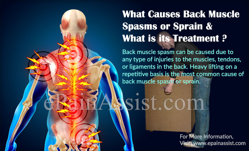 What Causes Back Muscle Spasm or Sprain?