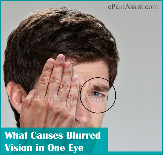 what causes blurred vision in one eye amp how is it treated