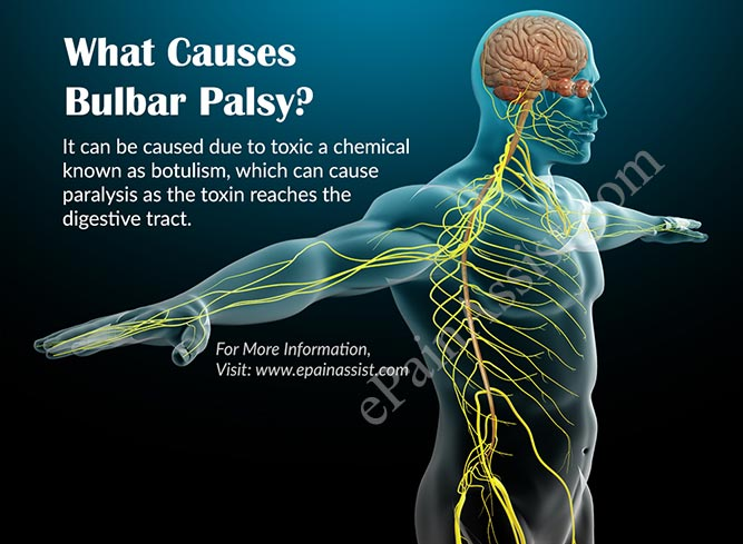What is Bulbar Palsy?