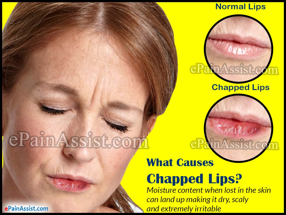 What Causes Chapped Lips?