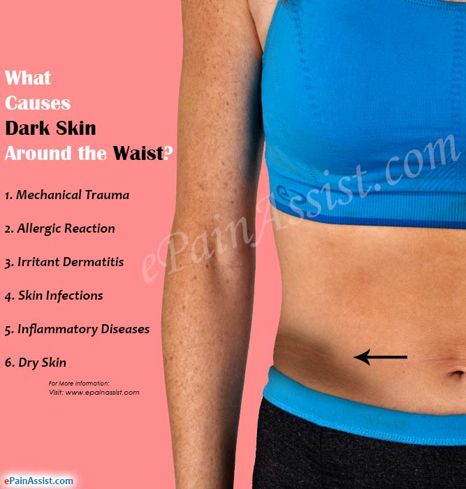 What Causes Dark Skin Around the Waist?
