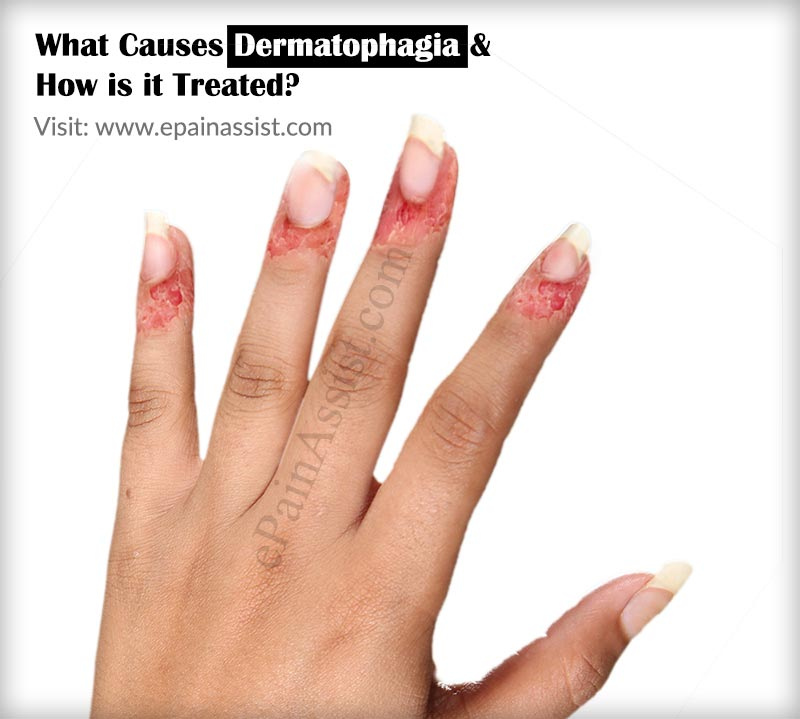 Causes Dermatophagia & How is it Treated?