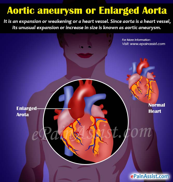 What are the Causes of Enlarged Aorta?