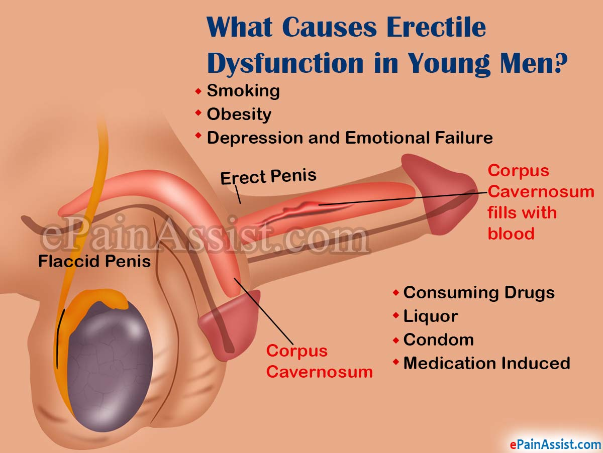 What Is Sexual Dysfunction