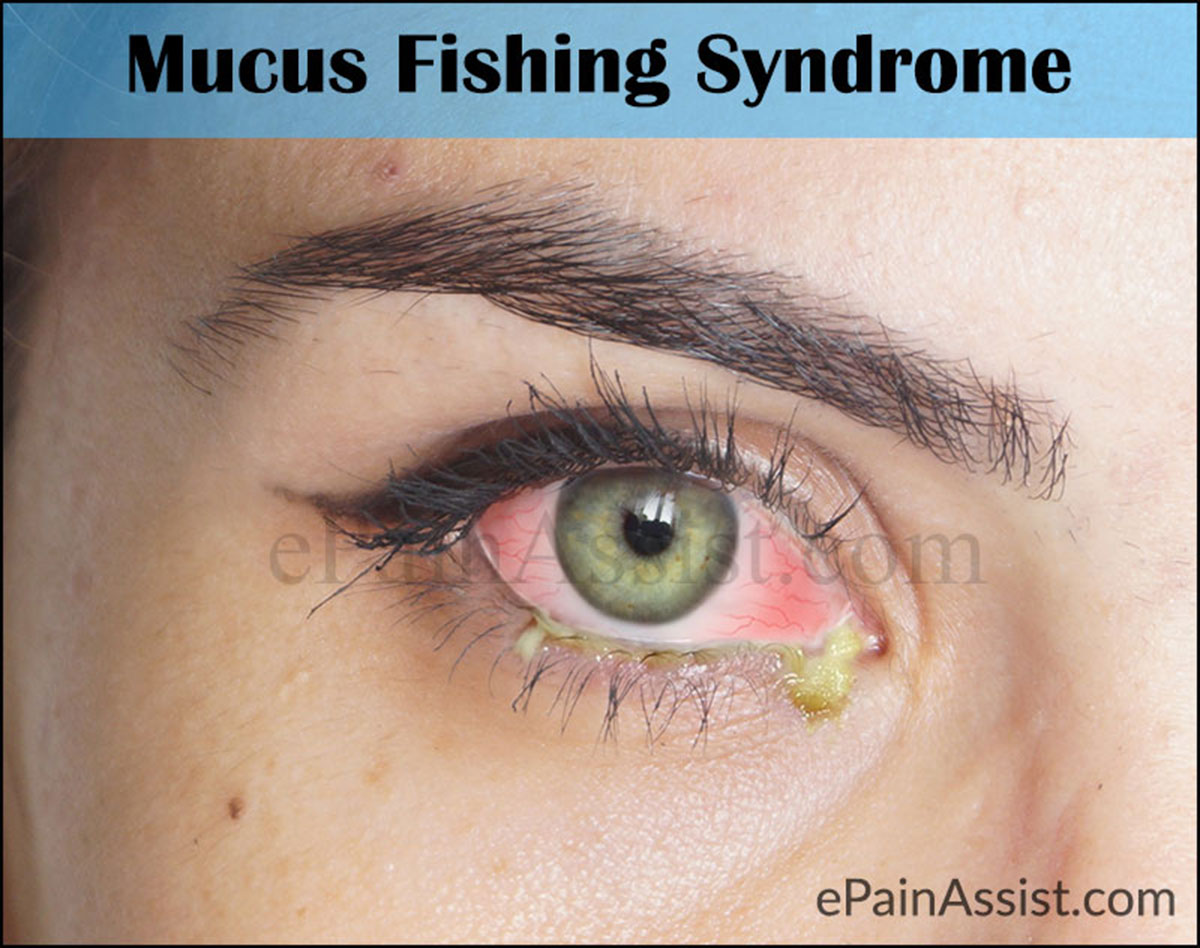what causes fishing mucus syndrome and what is its treatment