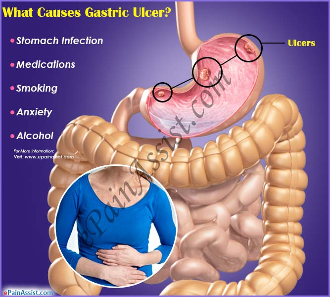 What Causes Gastric Ulcer?