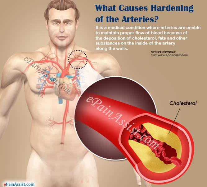 What Causes Hardening of the Arteries?