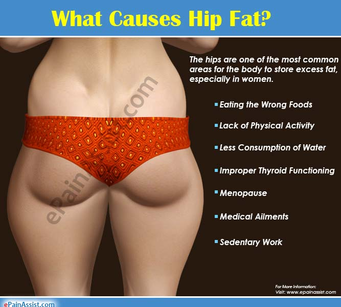 What Causes Hip Fat: Top Causes of Fat Accumulation around Hips