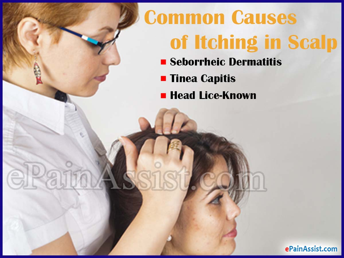 What Causes Itching in Scalp